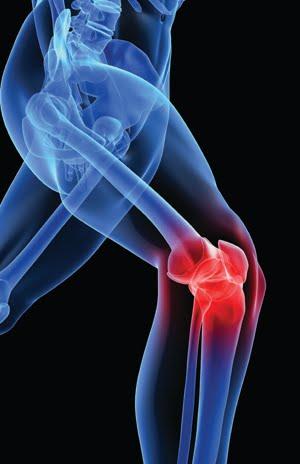 Ligament antéro externe de genou