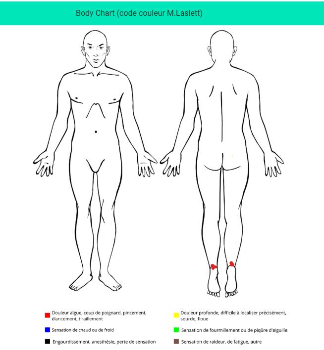 Enthésopathie bilatérale