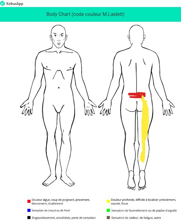lombalgie avec douleur somatique projetée